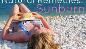 natural sunburn remedies